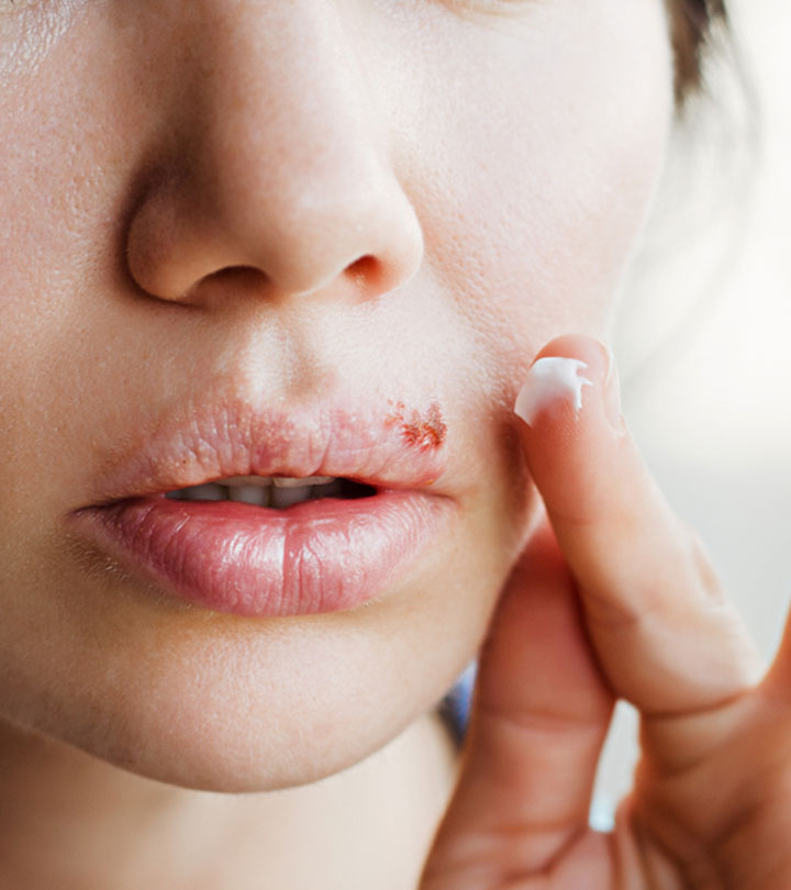 Herpes Causes, Symptoms and Home Remedies in Hindi