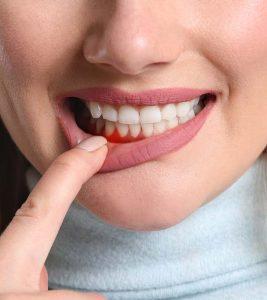 Periodontitis (Gum Disease) Causes, Symptoms and Home Remedies in Hindi