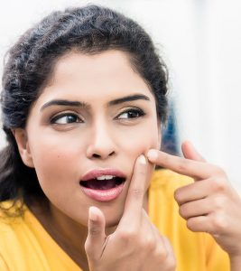 Castor Oil To Treat Acne in Hindi