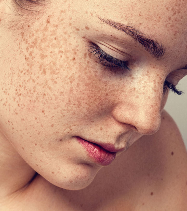 Freckles Causes and Home