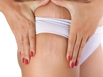 Is It Possible To Get Rid Of White Stretch Marks