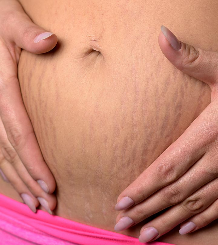Red Stretch Marks How To Treat Them
