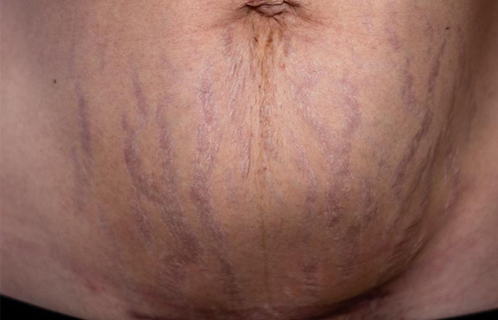 What Are Purple Stretch Marks How Do You Get Them