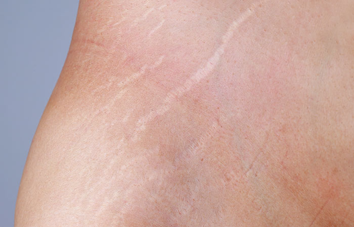 What Are White Stretch Marks