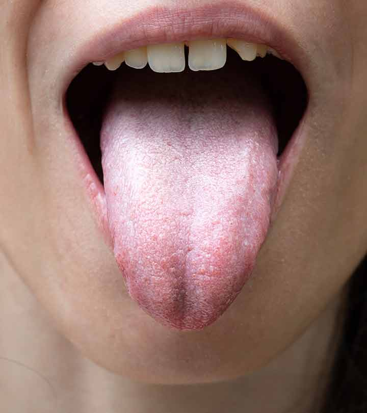White Tongue Causes, Symptoms and Home Remedies