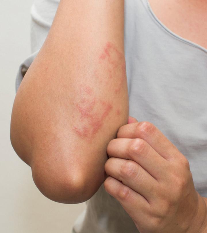 Skin Rashes Causes Symptoms