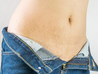 Stretch Marks In Teenagers How To Deal With Them