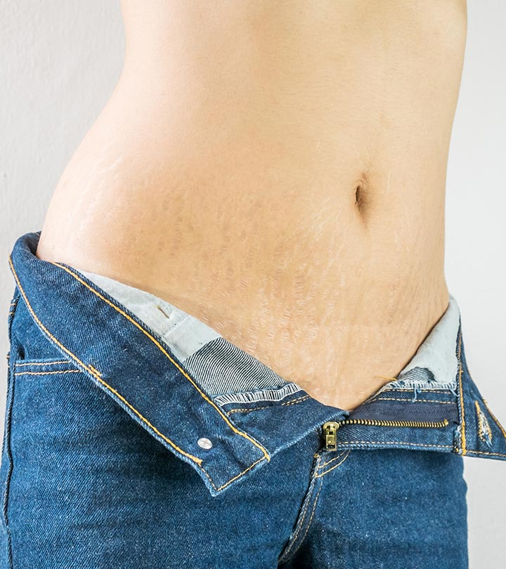 Stretch Marks In Teenagers: How To Deal With Them