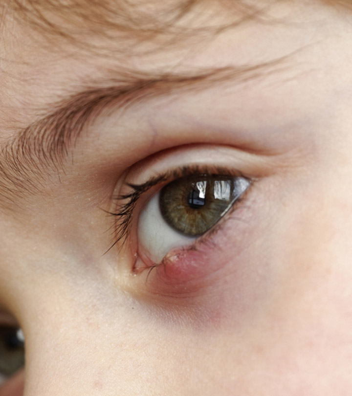 Stye Causes, Symptoms and Home Remedies