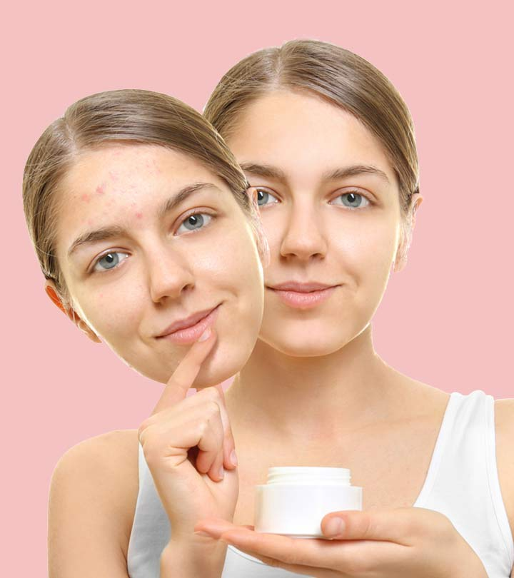 Your Guide To 14 Best Drugstore Acne Products Of 2020