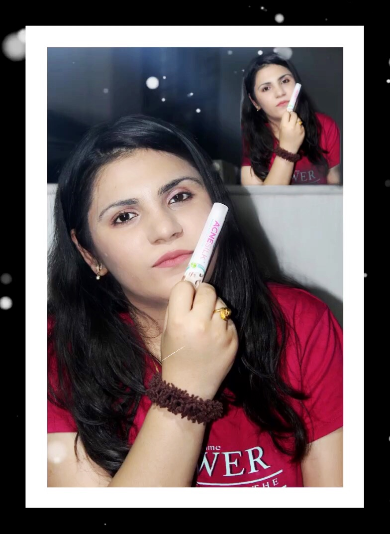 Green Cure Acne Silk – Herbal Anti Acne and Pimple Cream pic 1-Removes pimples , cure acne-By vershaladhani