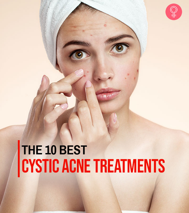 10 Best Cystic Acne Treatments In 2020
