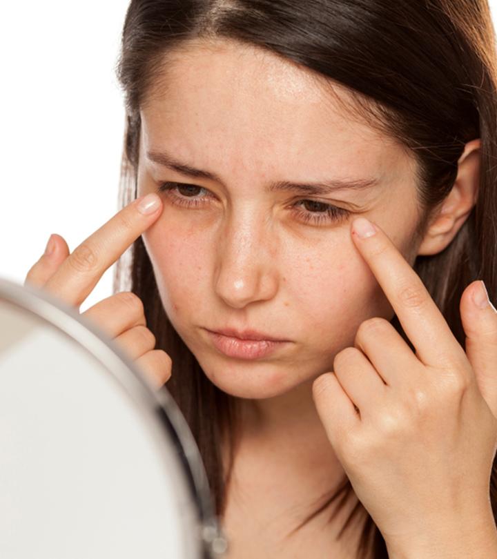 உங்கள் அழகைக் கேள்விக்குறி ஆக்கும் கருவளையங்களை விரைந்து சரி செய்ய சில அவசியக் குறிப்புகள் – How to remove dark circles in tamil