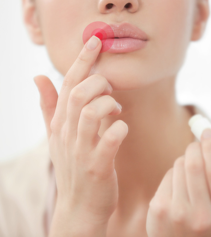 13 Best Lip Balms To Treat Cold Sores