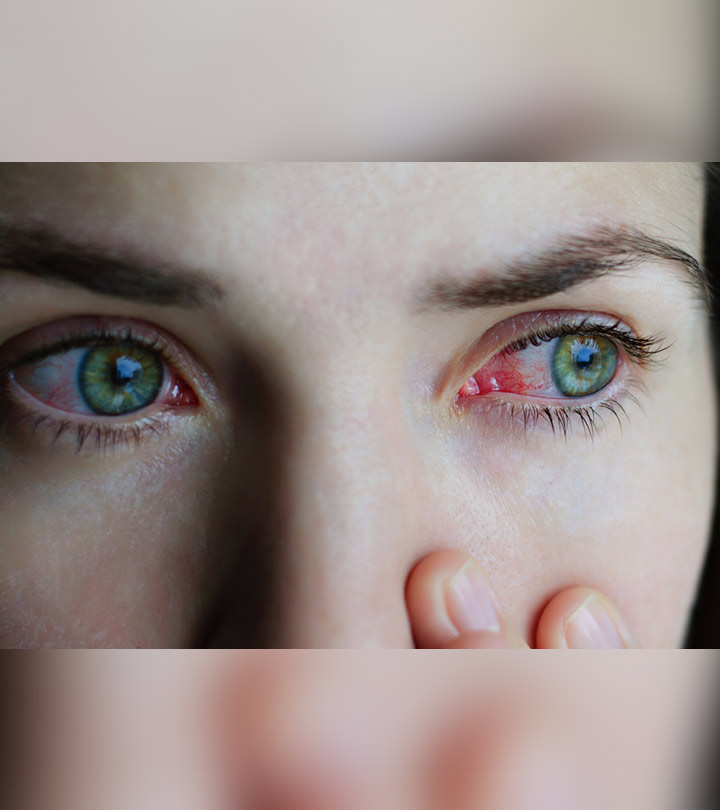 Home Remedies for Conjunctivitis (Pink Eye) in Hindi