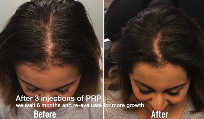 PRP Results – After 3 injections