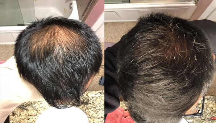 Finasteride Hair Growth Results-1