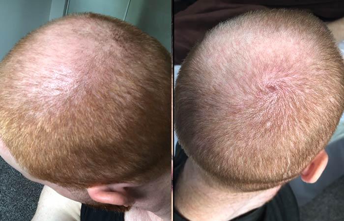 Laser Hair Growth Reviews2