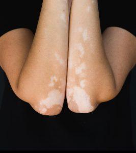 Vitiligo Leucoderma Diet chart in Hindi