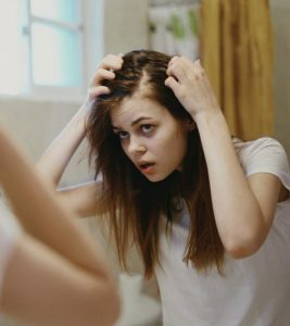 Androgenic Alopecia – Causes, Treatment, And More