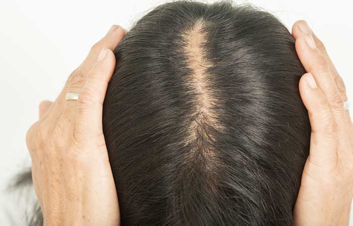 Diagnosing Androgenic Alopecia