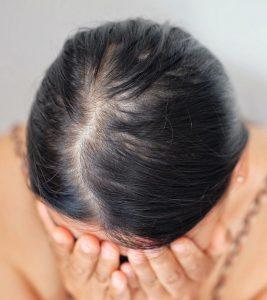 Diffuse Alopecia Causes, Symptoms, And Treatment