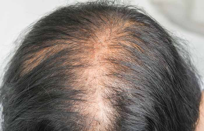 Signs And Symptoms Of Androgenic Alopecia