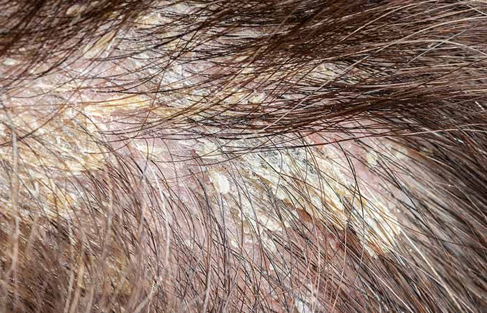 What Does Scalp Buildup Look Like