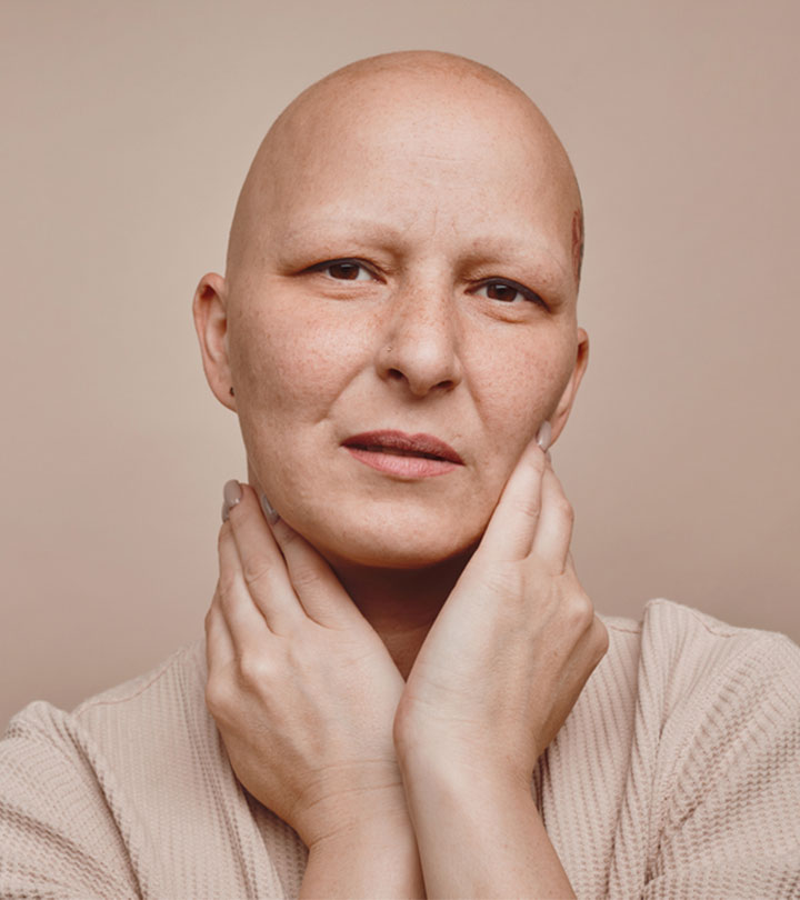 All You Need to Know About Alopecia Totalis