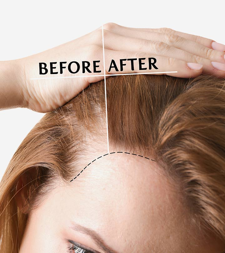 Hair Transplant Growth Timeline: What Can You Expect?