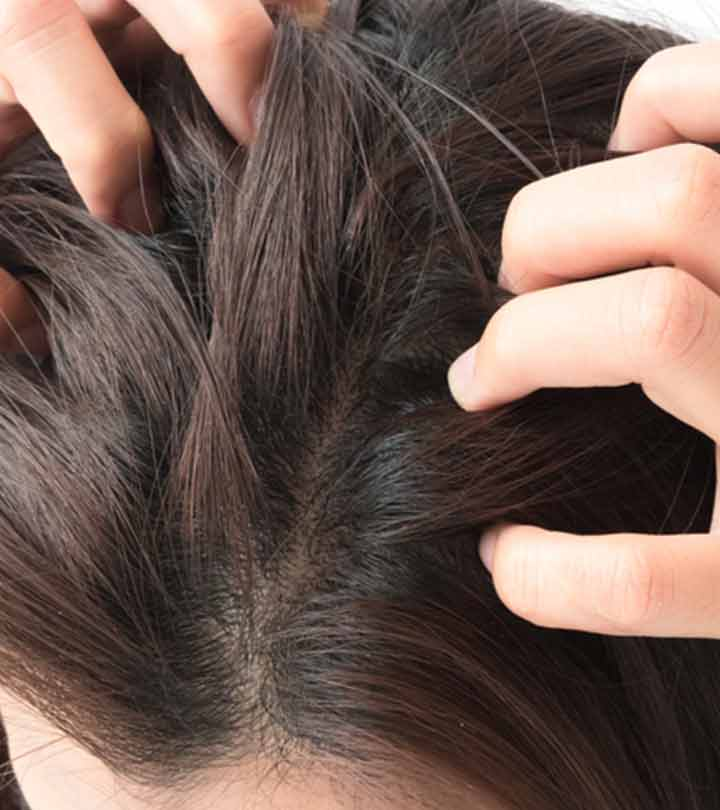 How To Stop Scalp Itching At Night