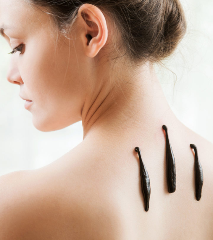Leech Therapy Benefits and Side Effects in Hindi