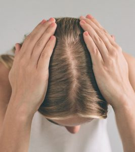 PCOS Hair Loss: Everything You Need To Know