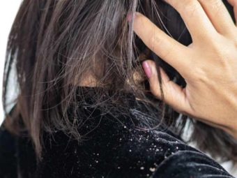 Dandruff Causes, Symptoms, and Treatment Options