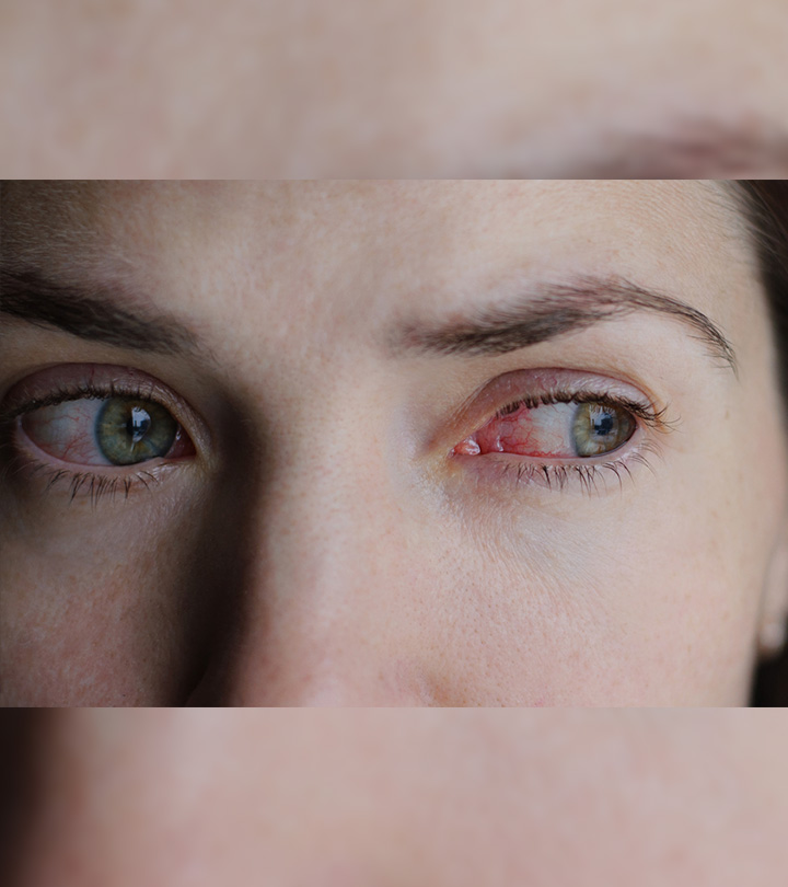 Home Remedies for Conjunctivitis (Pink Eye) in Bengali