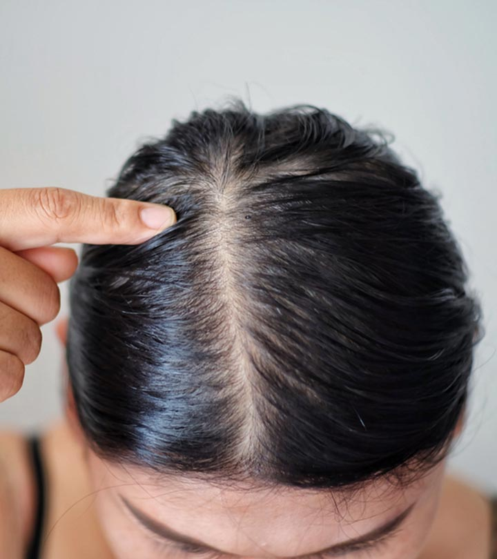 How Do You Treat A Dry Scalp And Oily Hair?