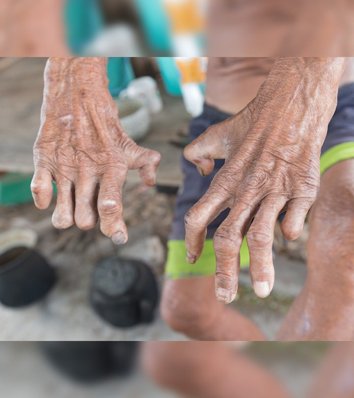 Leprosy Causes, Symptoms and Treatment in Bengali