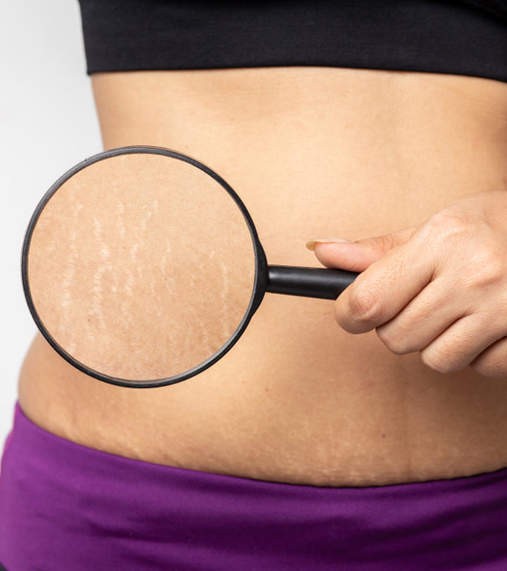 Olive Oil for Stretch Marks in Hindi