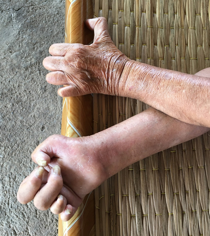 தொழுநோய்க்கான காரணங்கள், அறிகுறிகள் மற்றும் சிகிச்சை முறைகள் – Leprosy in tamil