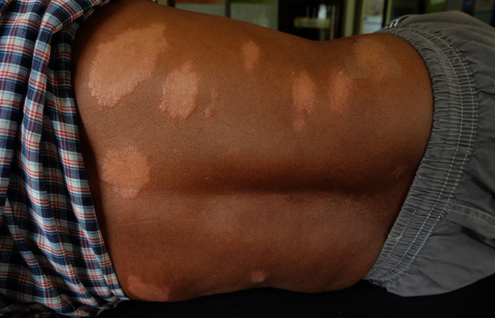 Types of Leprosy in tamil