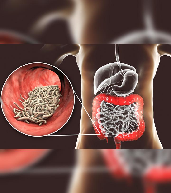 குடல் புழுக்களுக்கான வீட்டு வைத்தியம் – home remedies for pinworms in Tamil