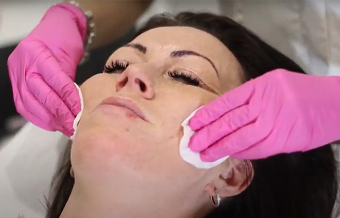 Carbon Laser Peel Facial