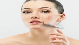 Anti Acne Treatment Kit