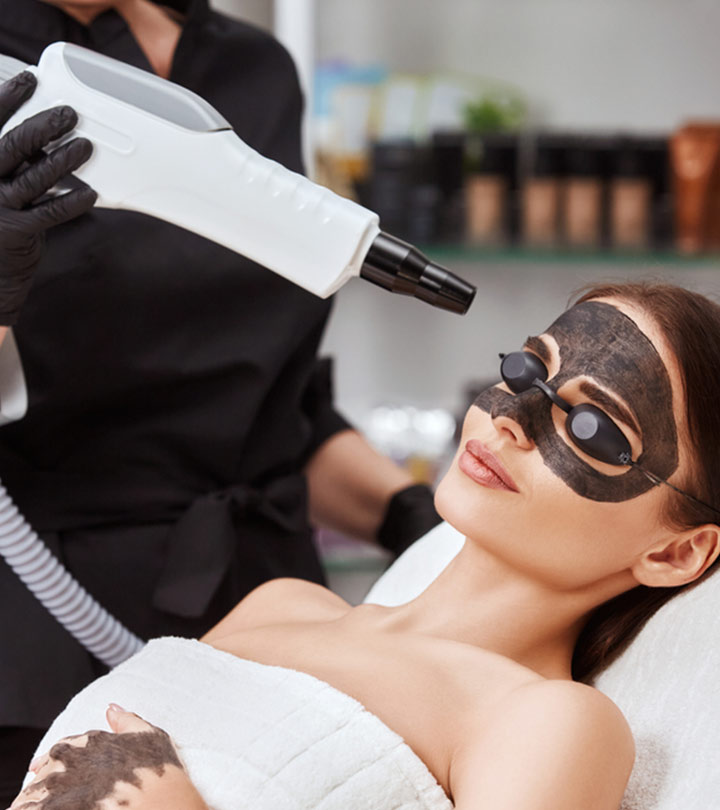 Carbon Laser Peel Facial – For Clear And Glowing Skin