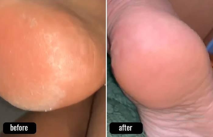 Listerine Foot Soak – Before And After Pictures