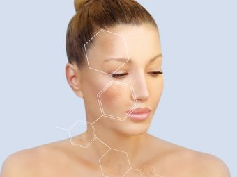 Melasma: What Is It, Causes, And Treatment Options