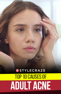 Top 10 Causes Of Adult Acne