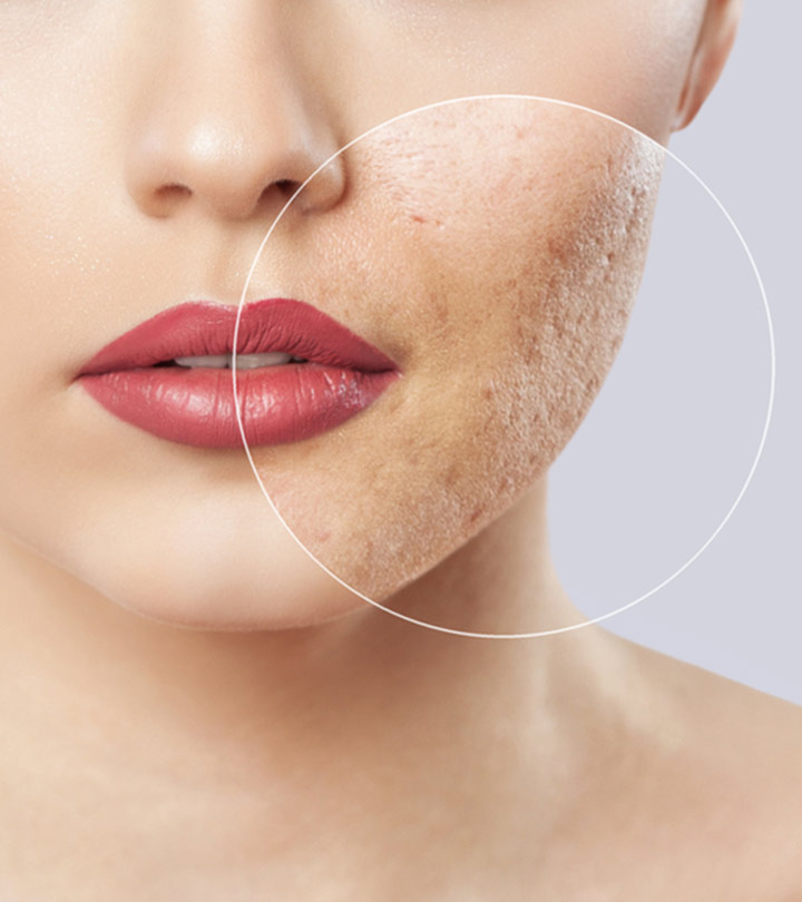 Types Of Acne Scars And How To Treat Them Naturally