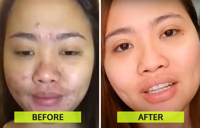Carbon Laser Peel Facial Before And After Results