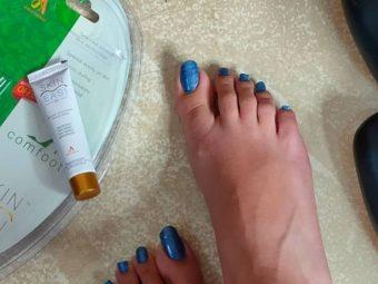 SkinEasi Comfoot Anti-Shoe Bite Gel -Amazing Foot Gel for Shoe Bite-By khushboo_shukla